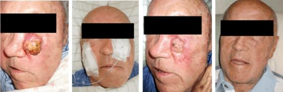 Figure 2 – Progression in condition of Florida Patient